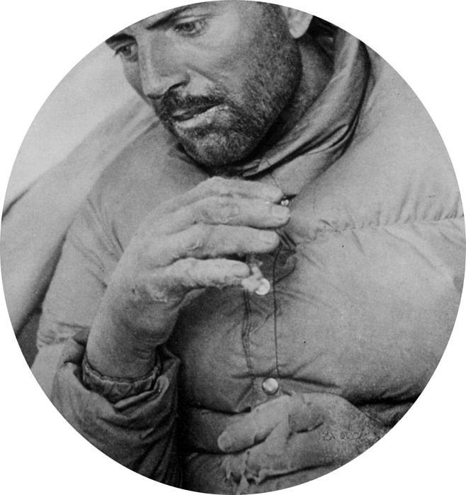 Морис Эрцог с обмороженными руками